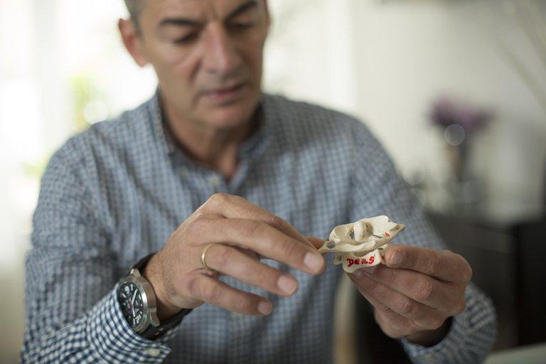Ein Mann hält ein Modell einer Halswirbelsäule in seiner Hand.