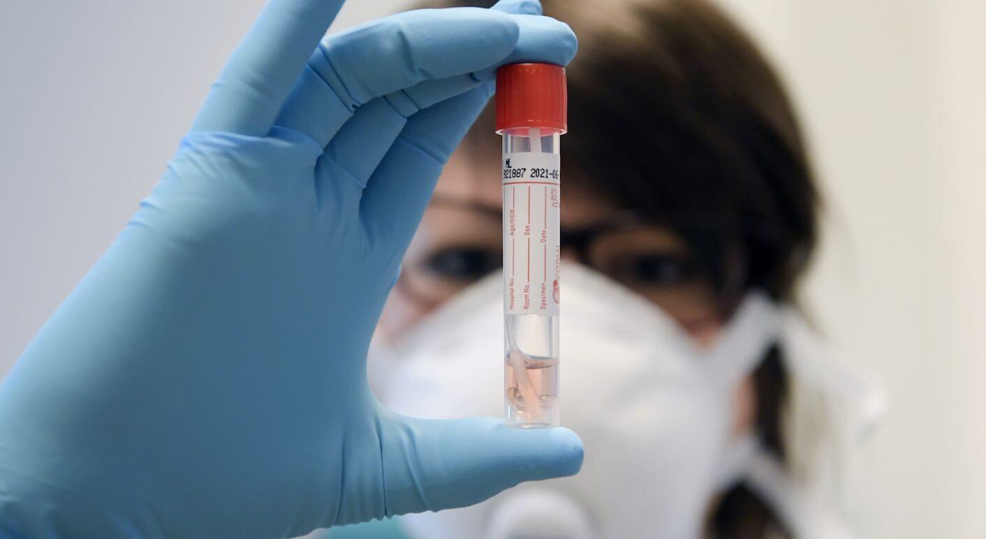 Coronavirus Symbolbild Labor