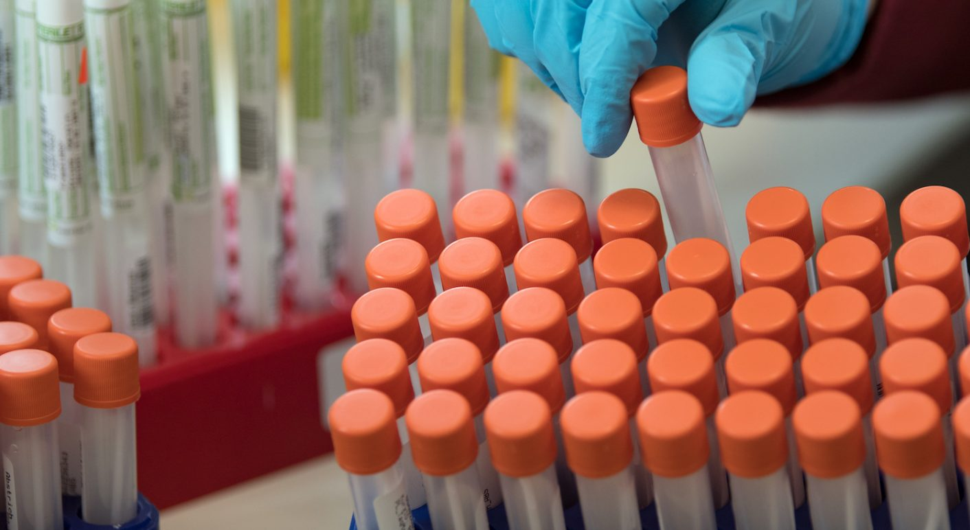 PCR-Tests Coronavirus