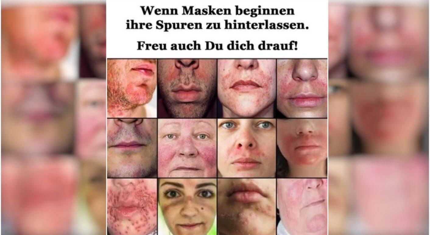 hautausschlag_header
