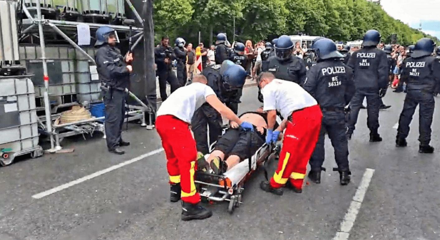 In den Sozialen Netzwerken kursieren Berichte über angebliche Polizeigewalt. Einer davon zeigt Bilder von einem Mann, der angeblich von der Polizei verletzt wurde.