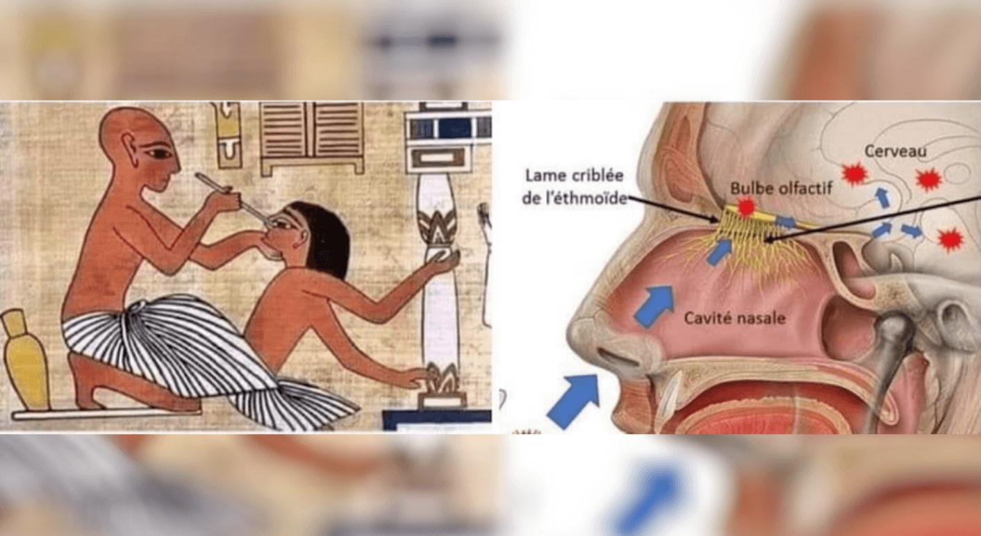 Auf Facebook wird mit diesen Bildern ein falscher Zusammenhang zwischen der Durchführung eines Nasenrachenabstrichs beim Corona-Test und einer Behandlungsmethode im Alten Ägypten hergestellt.