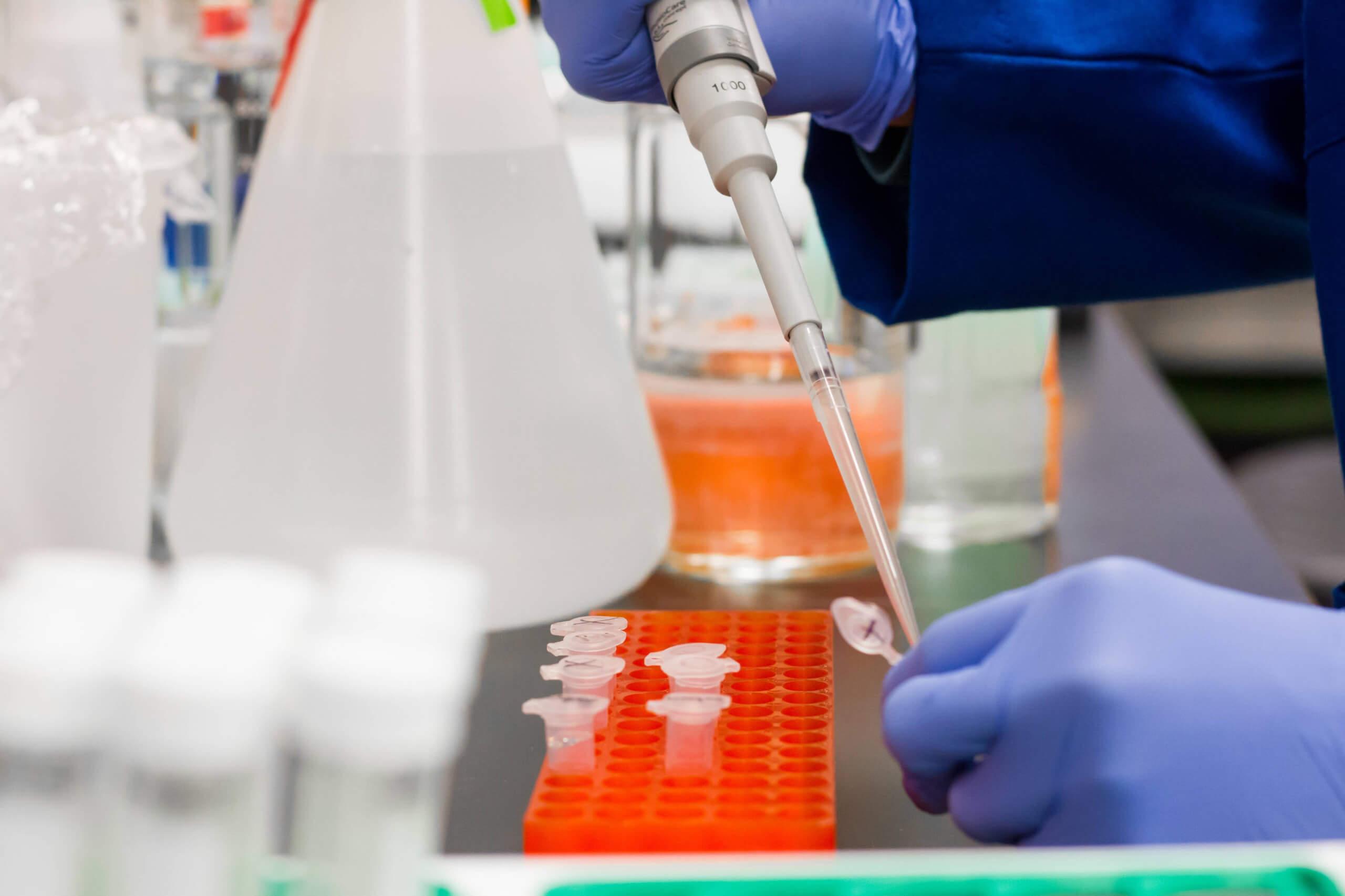 Keine Belege für eine Untersuchung von 1.500 PCR-Tests durch Dolores Cahill oder Todesfälle wegen Corona-Impfungen