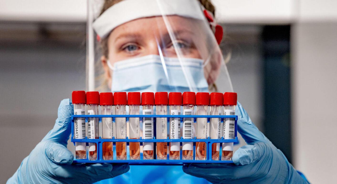 Symbolfoto PCR-Tests