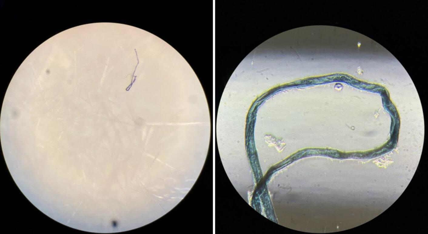 Bei dem dunklen Faden, den wir auf einem Antigen-Schnelltest-Tupfer gefunden haben, handelt es sich um eine blaue Stofffaser, wie hier unter dem Mikroskop zu erkennen ist. (Foto-Credits: Mark Benecke / virusonline.de / Collage: CORRECTIV.Faktencheck)